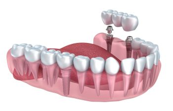 Dental Implants Gainesville GA